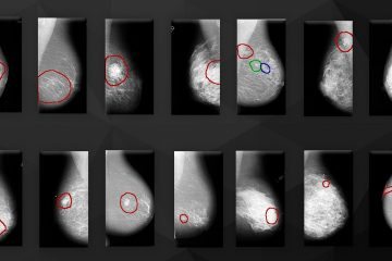 Detection of abnormalities on mammographic images
